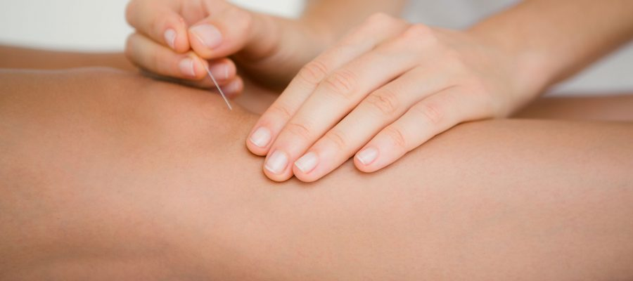 acupuncture-therapy-hor