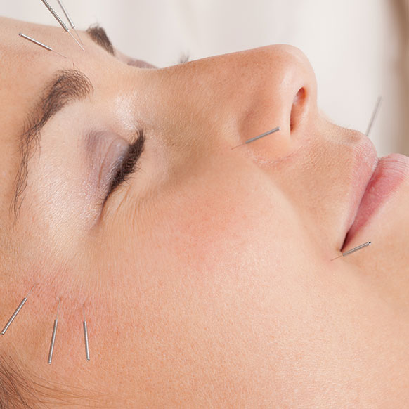 cosmetic-acupuncture-service